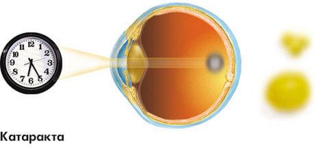 Конспект глаза орган зрения