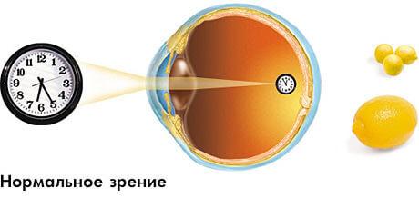 Как улучшить зрение до 100 за месяц