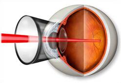 Адонис центр коррекции зрения череповец