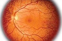 Временная потеря зрения на один глаз причины и лечение