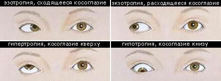 Как народными способами улучшить зрение