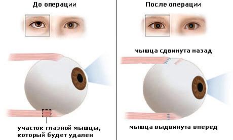 Где в москве бесплатно проверить зрение в москве бесплатно и купить очки