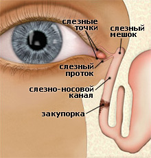 Дакриоцистит